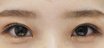 湘南美容クリニック大阪堺東院の目・二重の整形の症例写真[アフター]