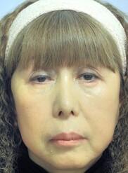 新宿美容外科クリニックの症例写真[アフター]