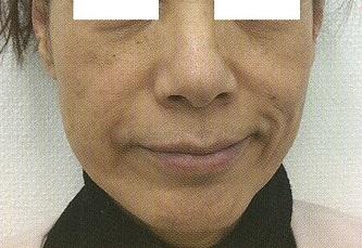 若返り注入治療「ヒアルロン酸でリフトアップ」の症例写真[ビフォー]