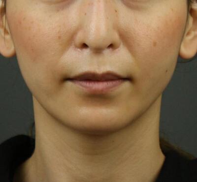 Vライン小顔リフト(糸リフト+アゴヒアルロン酸注射)の症例写真[アフター]
