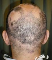 恵聖会クリニックの薄毛治療・AGA・発毛の症例写真[アフター]