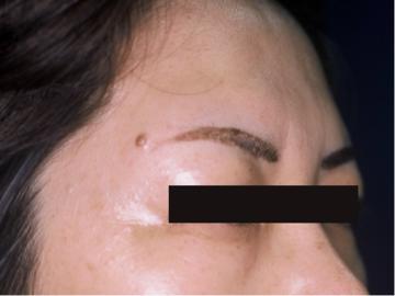 天神かよこクリニックのホクロ除去・あざ治療・イボ治療の症例写真[ビフォー]