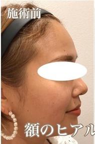 西宮SHUHEI美容クリニックの輪郭・顎の整形の症例写真[ビフォー]
