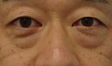 みらいビューティークリニック和歌山の目元の整形、くま治療の症例写真[ビフォー]