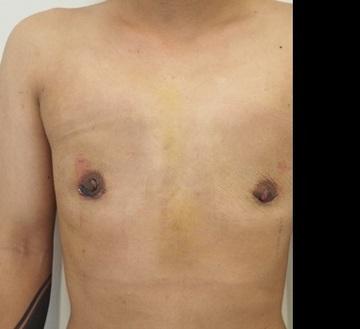 静岡美容外科橋本クリニックのその他の美容整形の症例写真[アフター]