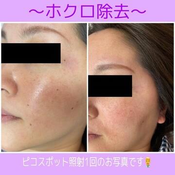 札幌クララ美容皮膚科のシミ治療(シミ取り)・肝斑・毛穴治療の症例写真