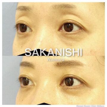 湘南 美容 外科 目の下 の たるみ