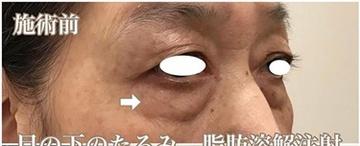 西宮SHUHEI美容クリニックの目元の整形、くま治療の症例写真[ビフォー]