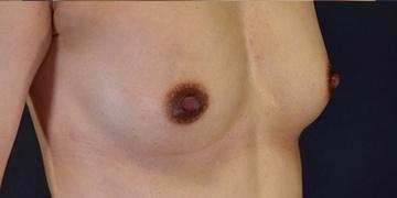 GRACIA clinic(グラシアクリニック)の乳首・乳輪の整形の症例写真[アフター]