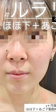 ルラ美容クリニックの脂肪吸引の症例写真[ビフォー]