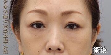 銀座みゆき通り美容外科大阪院の目元の整形、くま治療の症例写真[アフター]