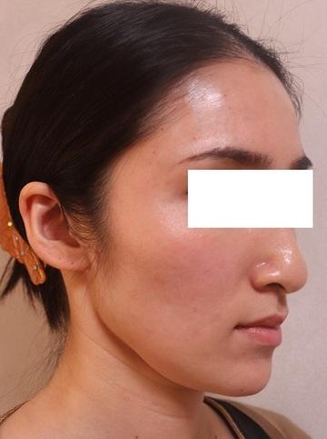 ビューティークリニック ザ ギンザの顔の整形(輪郭・顎の整形)の症例写真[ビフォー]