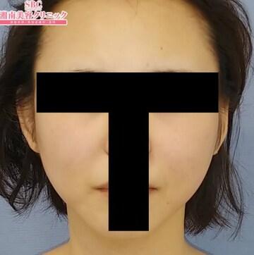 湘南美容クリニック 大阪梅田院の顔のしわ・たるみの整形(リフトアップ手術)の症例写真[アフター]