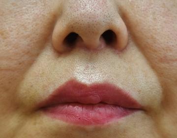 タウン形成外科クリニックの口元・唇の整形の症例写真[アフター]