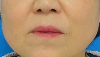 TCB式小顔美肌再生 クリスタル[アフター]