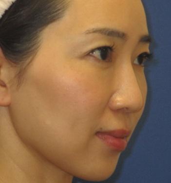 トキコクリニック 京都四条院のシワ・たるみ(照射系リフトアップ治療)の症例写真[アフター]