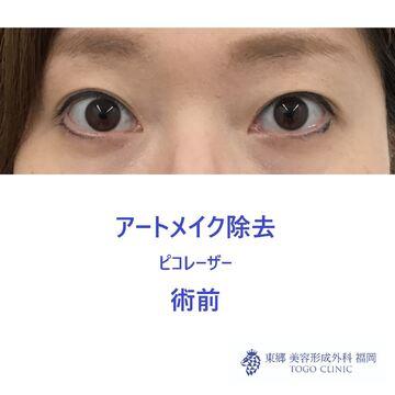 東郷美容形成外科 福岡のタトゥー除去の症例写真[ビフォー]