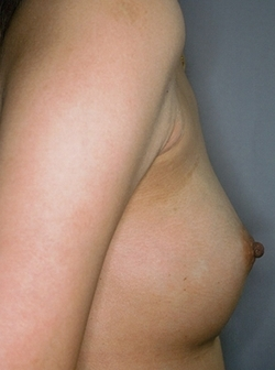 白山クリニックの豊胸・胸の整形の症例写真[アフター]