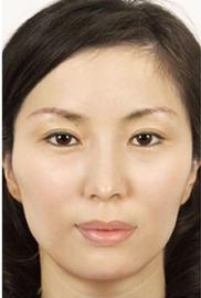 リッツ美容外科 大阪院の顔の整形(輪郭・顎の整形)の症例写真[ビフォー]