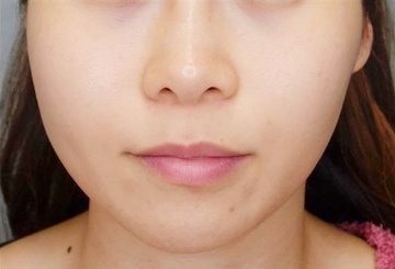 品川美容外科 渋谷院の顔のしわ・たるみの整形の症例写真[ビフォー]