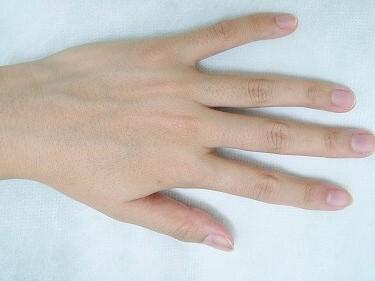 ひじ下・手指甲の医療レーザー脱毛の症例写真[ビフォー]