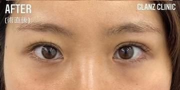 GLANZ CLINIC (グランツクリニック)の目・二重整形の症例写真[アフター]