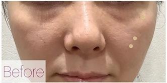 La Clinique Ginza(ラ クリニック銀座)の目元の整形、くま治療の症例写真[ビフォー]