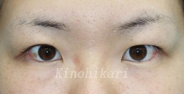 樹のひかり形成外科・皮ふ科の目・二重の整形の症例写真[ビフォー]