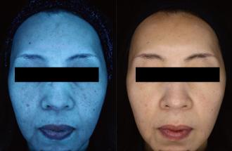 シミ治療(ピコフラクショナルレーザー)の症例写真[ビフォー]