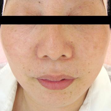 ドーズ美容外科のシミ治療(シミ取り)・肝斑・毛穴治療の症例写真[アフター]