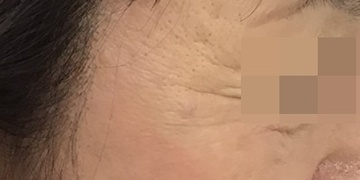 東郷美容形成外科 福岡のホクロ除去・あざ治療・イボ治療の症例写真[アフター]