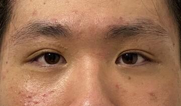 東京美容外科 秋田院の症例写真[アフター]