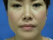新宿美容外科クリニックの顔の整形(輪郭・顎の整形)の症例写真[ビフォー]