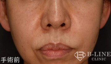 B-LINE CLINICの鼻の整形の症例写真[ビフォー]