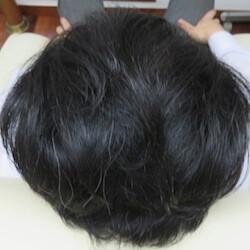 はなふさ皮膚科の薄毛治療・AGA・発毛の症例写真[アフター]