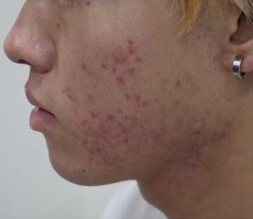 静岡美容外科橋本クリニックのニキビ治療・ニキビ跡の治療の症例写真[ビフォー]