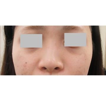 新宿ビューティークリニックのシミ治療(シミ取り)・肝斑・毛穴治療の症例写真[アフター]