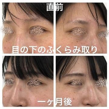 ルラ美容クリニックの目元整形・クマ治療の症例写真