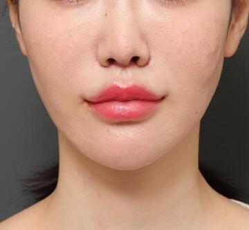 オザキクリニック LUXE新宿の顔の整形(輪郭・顎の整形)の症例写真[アフター]