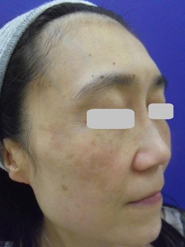 e-maxSRのシミ治療の症例写真[アフター]