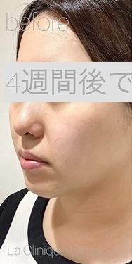 銀座長瀬クリニックのシワ・たるみ(照射系リフトアップ治療)の症例写真[ビフォー]