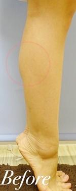 表参道スキンクリニックの痩身、メディカルダイエットの症例写真[ビフォー]