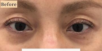 Kalon Clinic(カロンクリニック)の目元整形・クマ治療の症例写真[ビフォー]
