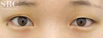 湘南美容クリニック 姫路院の目・二重の整形の症例写真[ビフォー]