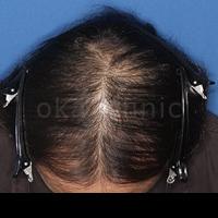桜花クリニック HARG開発者のAGA・薄毛治療院の薄毛治療の症例写真[ビフォー]