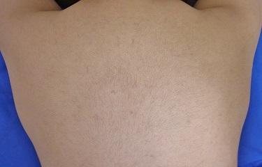 背中の医療レーザー脱毛の症例写真[アフター]