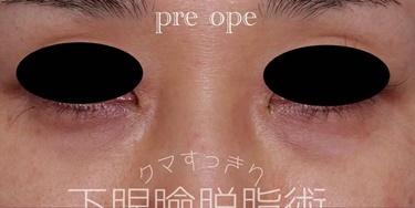 下眼瞼脱脂術の症例写真[ビフォー]