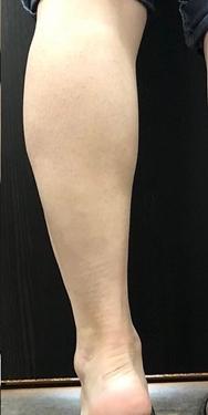 ルラ美容クリニックの痩身、メディカルダイエットの症例写真[アフター]