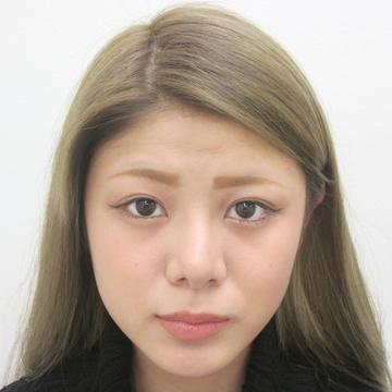 水の森美容外科の鼻の整形の症例写真[アフター]