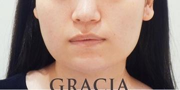 GRACIA clinic(グラシアクリニック) (旧L.O.V.E beauty clinic)の顔のしわ・たるみの整形(リフトアップ手術)の症例写真[ビフォー]